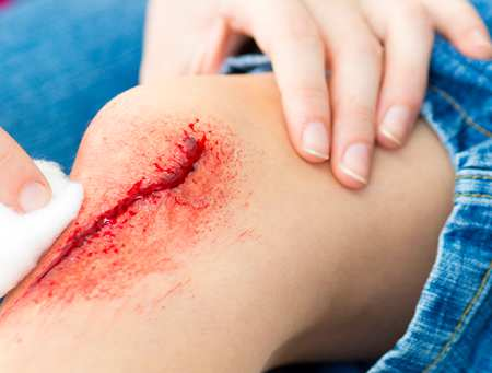 Principles of wound management - getty images.png