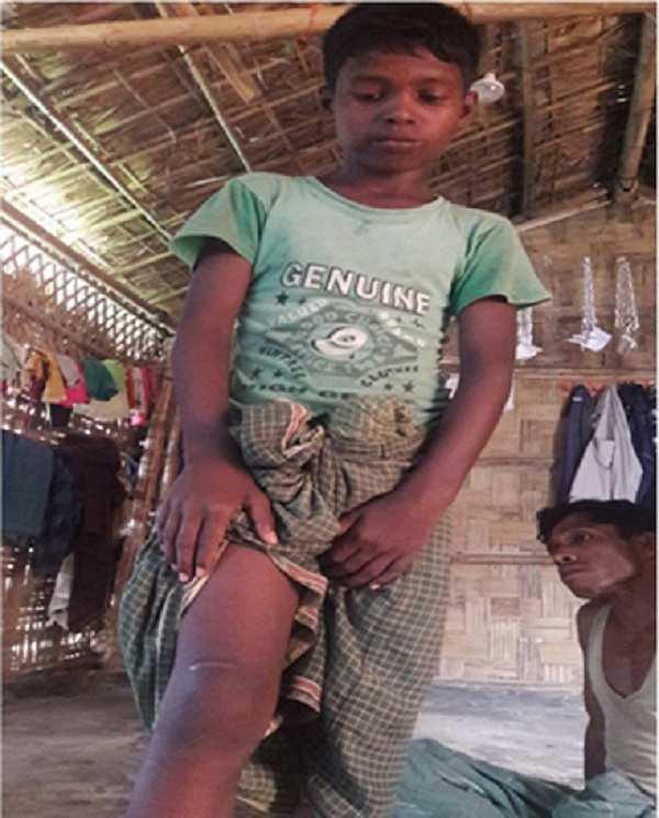 Dr Palash Kamruzzaman research project: Rohingya Boy showing injury mark.jpg